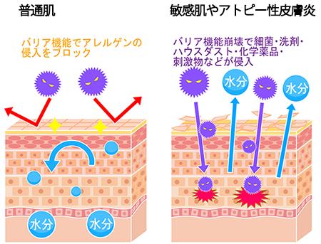 敏感肌やアトピー性皮膚炎の画像