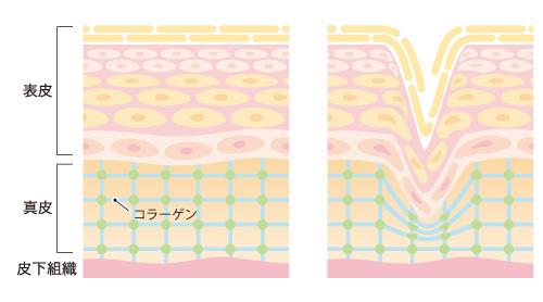 コラーゲンの効果の画像