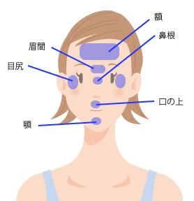 ボトックス注射の効果的な部位の画像