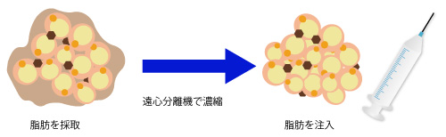 SBC・リッチ・フェイス法の画像