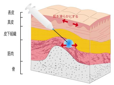 ボトックス注射の画像