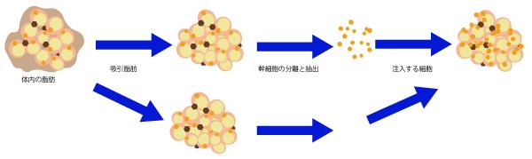 セルーション脂肪幹細胞注入法の画像
