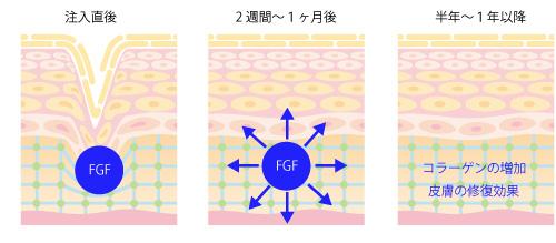FGF注入療法の画像